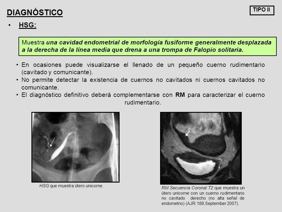 TIPO II DIAGNÓSTICO. HSG: Muestra una cavidad endometrial de morfología fusiforme generalmente desplazada.