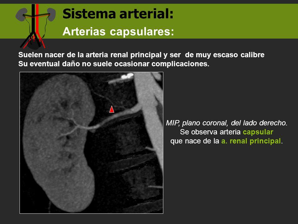 Sistema arterial: Arterias capsulares: