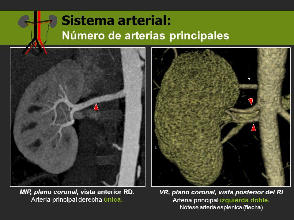 Sistema arterial: Número de arterias principales