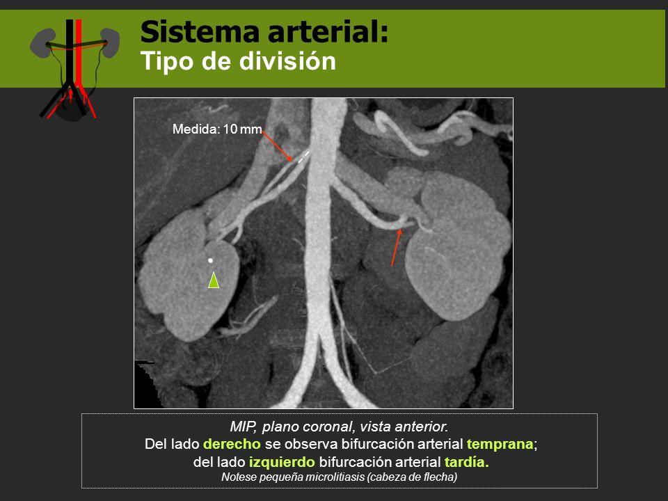 Sistema arterial: Tipo de división MIP, plano coronal, vista anterior.