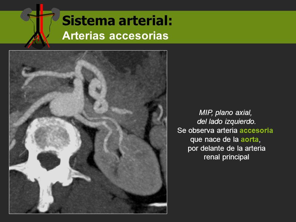 Sistema arterial: Arterias accesorias MIP, plano axial,