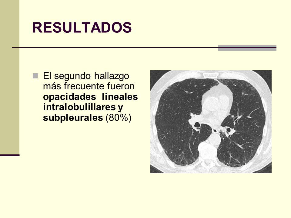 RESULTADOS El segundo hallazgo más frecuente fueron opacidades lineales intralobulillares y subpleurales (80%)
