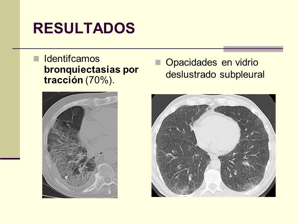RESULTADOS Identifcamos bronquiectasias por tracción (70%).