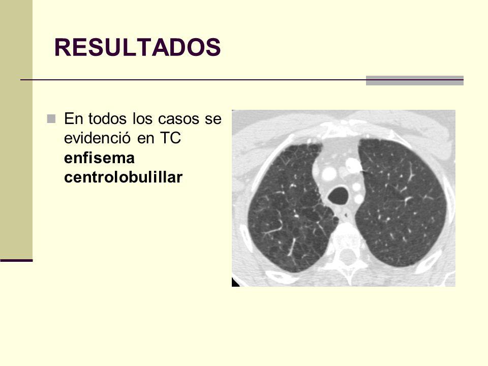 RESULTADOS En todos los casos se evidenció en TC enfisema centrolobulillar