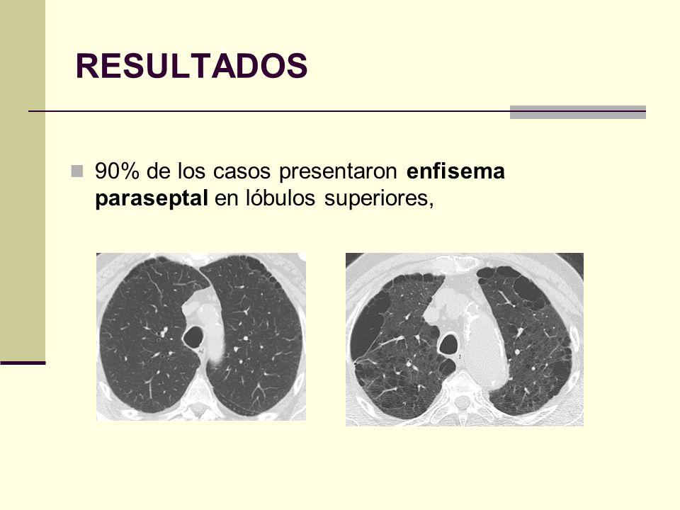 RESULTADOS 90% de los casos presentaron enfisema paraseptal en lóbulos superiores,