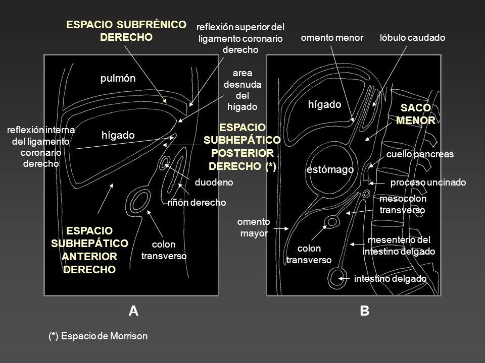A B ESPACIO SUBFRÉNICO DERECHO pulmón hígado SACO MENOR