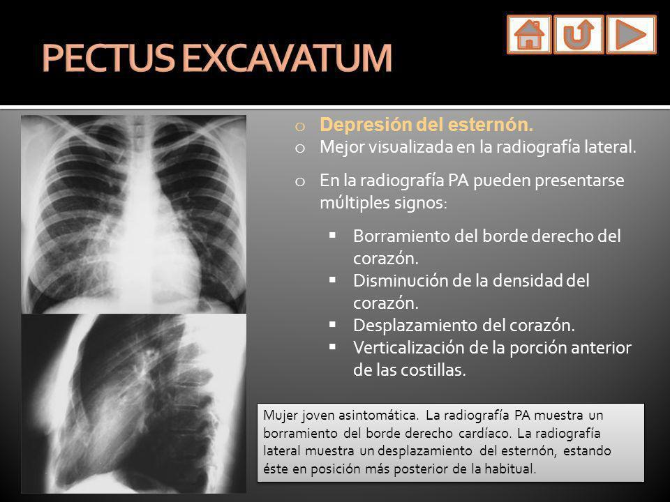 PECTUS EXCAVATUM Depresión del esternón.