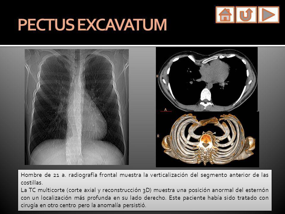 PECTUS EXCAVATUM Hombre de 21 a. radiografía frontal muestra la verticalización del segmento anterior de las costillas.