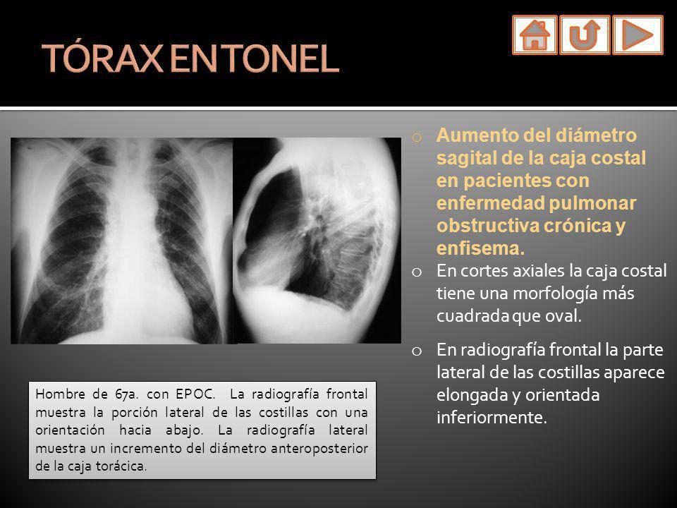 TÓRAX EN TONELAumento del diámetro sagital de la caja costal en pacientes con enfermedad pulmonar obstructiva crónica y enfisema.