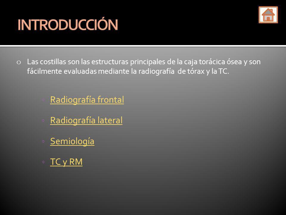 INTRODUCCIÓN Radiografía frontal Radiografía lateral Semiología