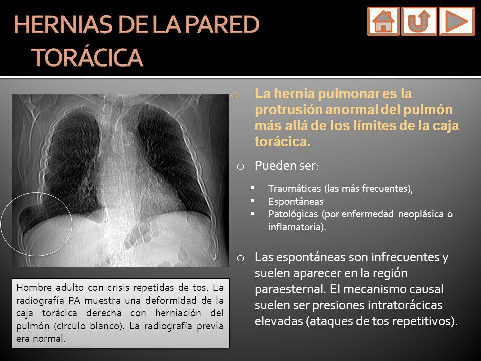 HERNIAS DE LA PARED TORÁCICA
