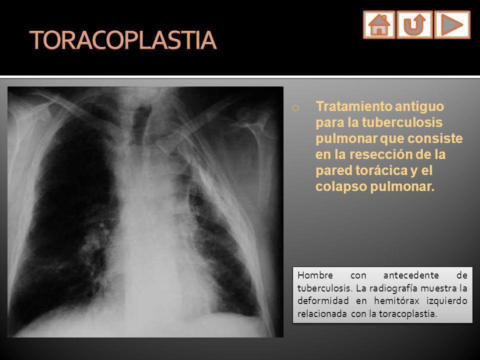 TORACOPLASTIA Tratamiento antiguo para la tuberculosis pulmonar que consiste en la resección de la pared torácica y el colapso pulmonar.
