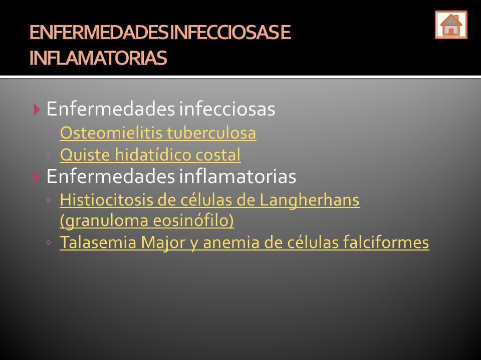 ENFERMEDADES INFECCIOSAS E INFLAMATORIAS