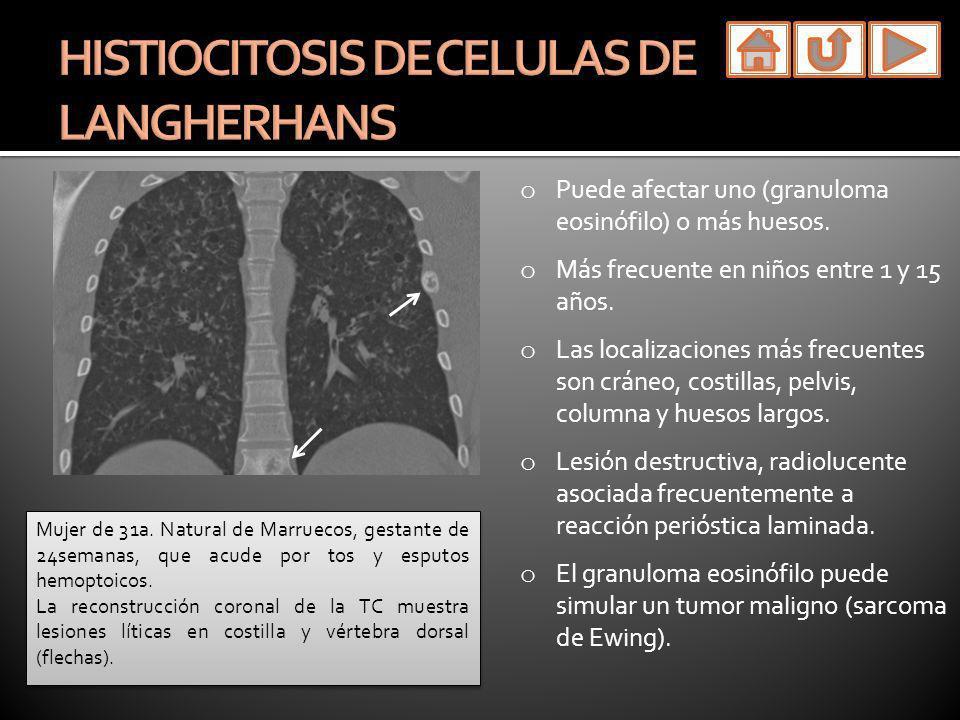 HISTIOCITOSIS DE CELULAS DE LANGHERHANS