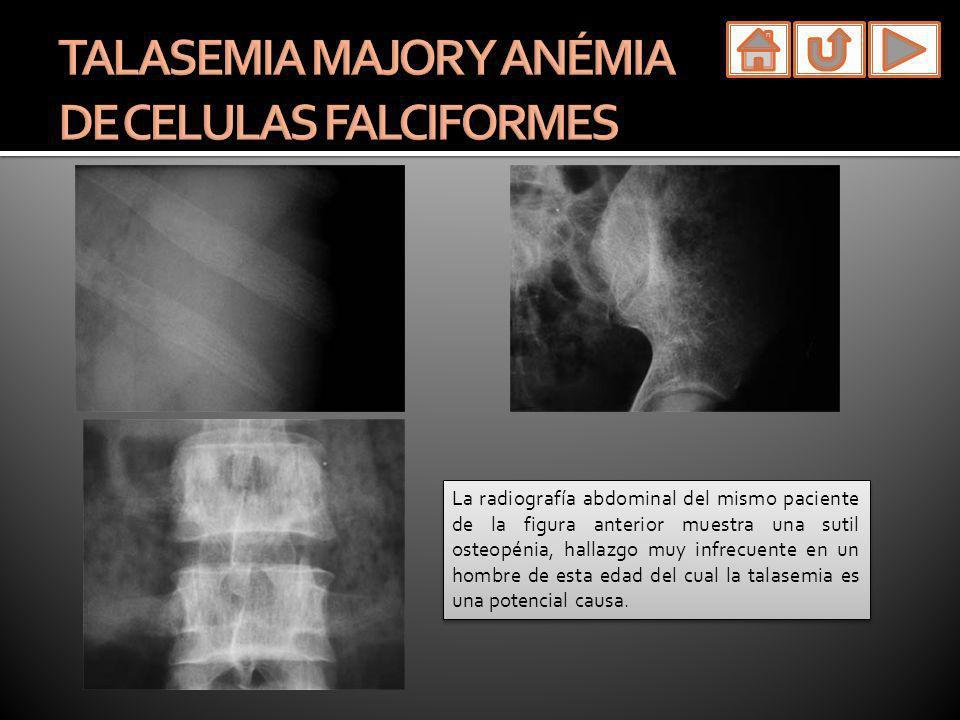TALASEMIA MAJOR Y ANÉMIA DE CELULAS FALCIFORMES