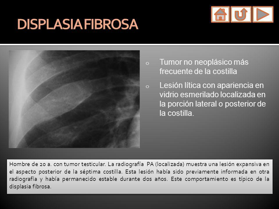 DISPLASIA FIBROSA Tumor no neoplásico más frecuente de la costilla