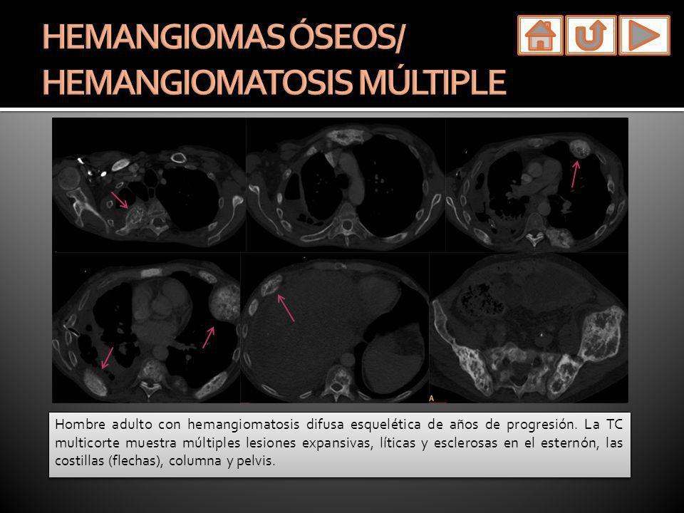 HEMANGIOMAS ÓSEOS/ HEMANGIOMATOSIS MÚLTIPLE