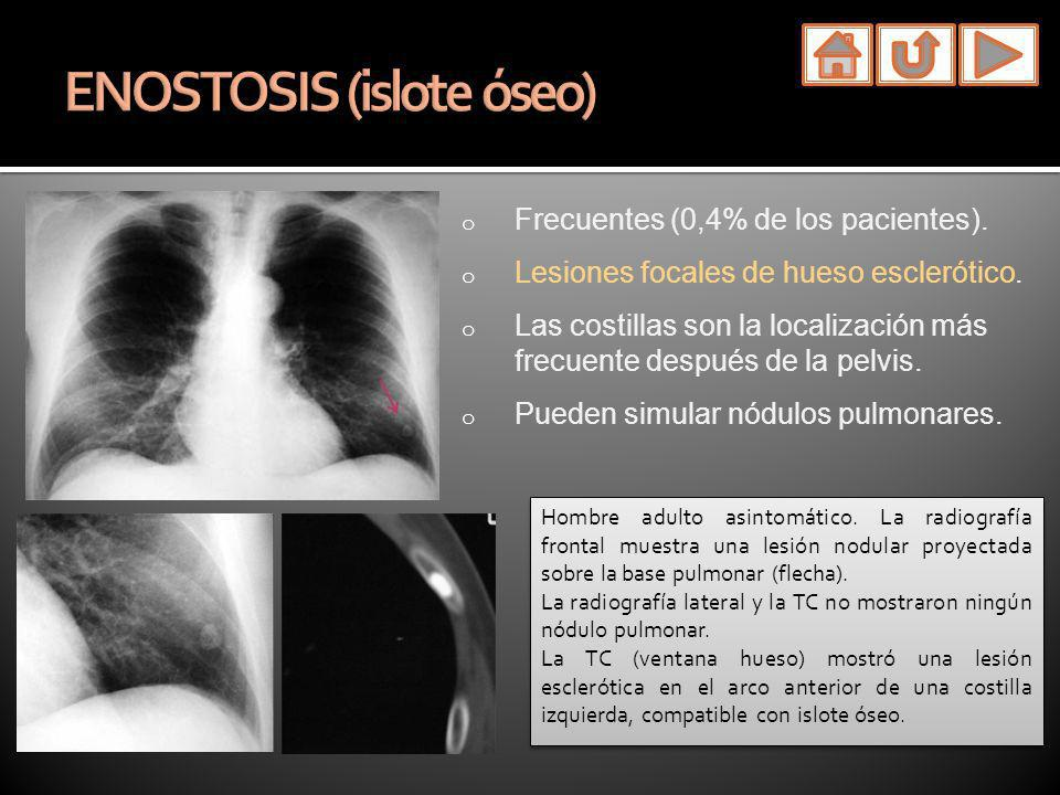 ENOSTOSIS (islote óseo)