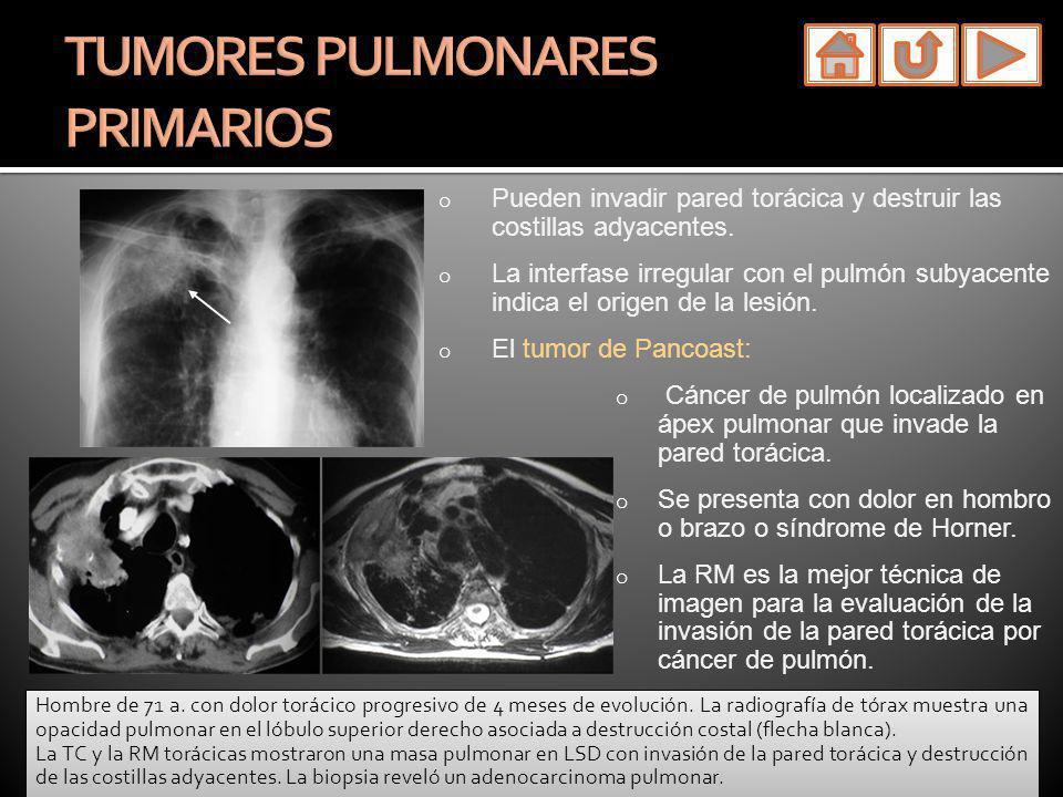 TUMORES PULMONARES PRIMARIOS
