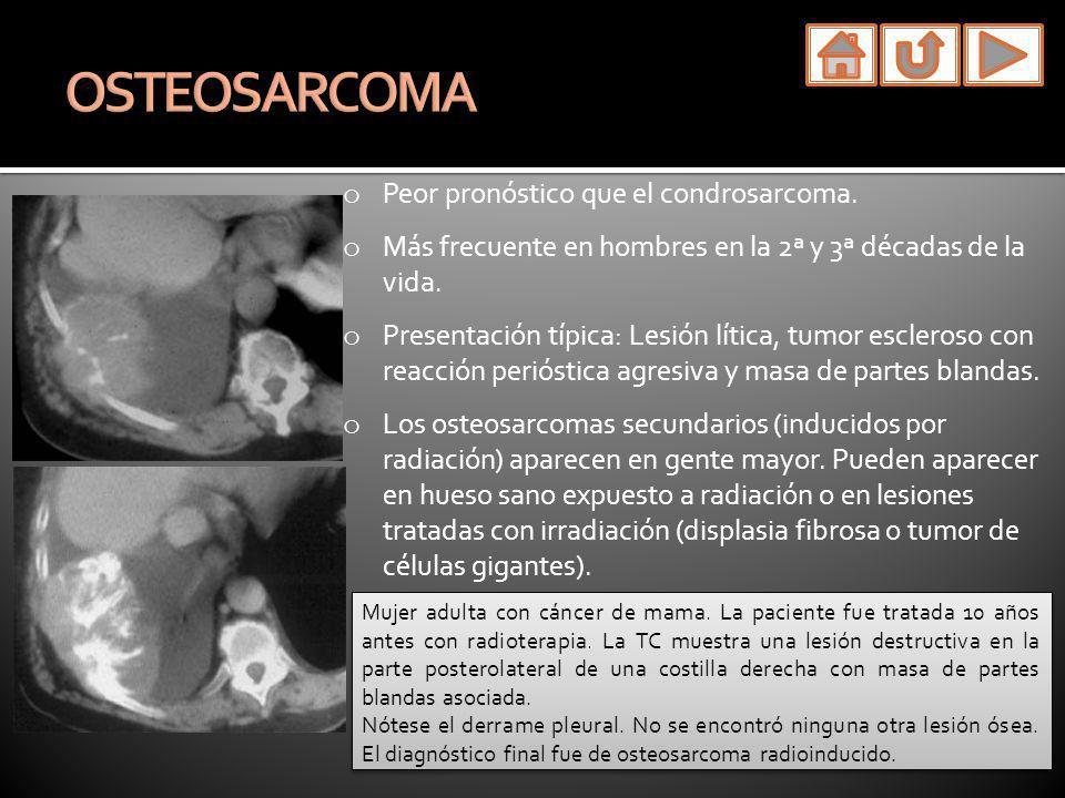 OSTEOSARCOMA Peor pronóstico que el condrosarcoma.