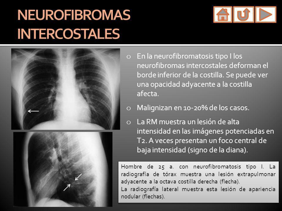 NEUROFIBROMAS INTERCOSTALES