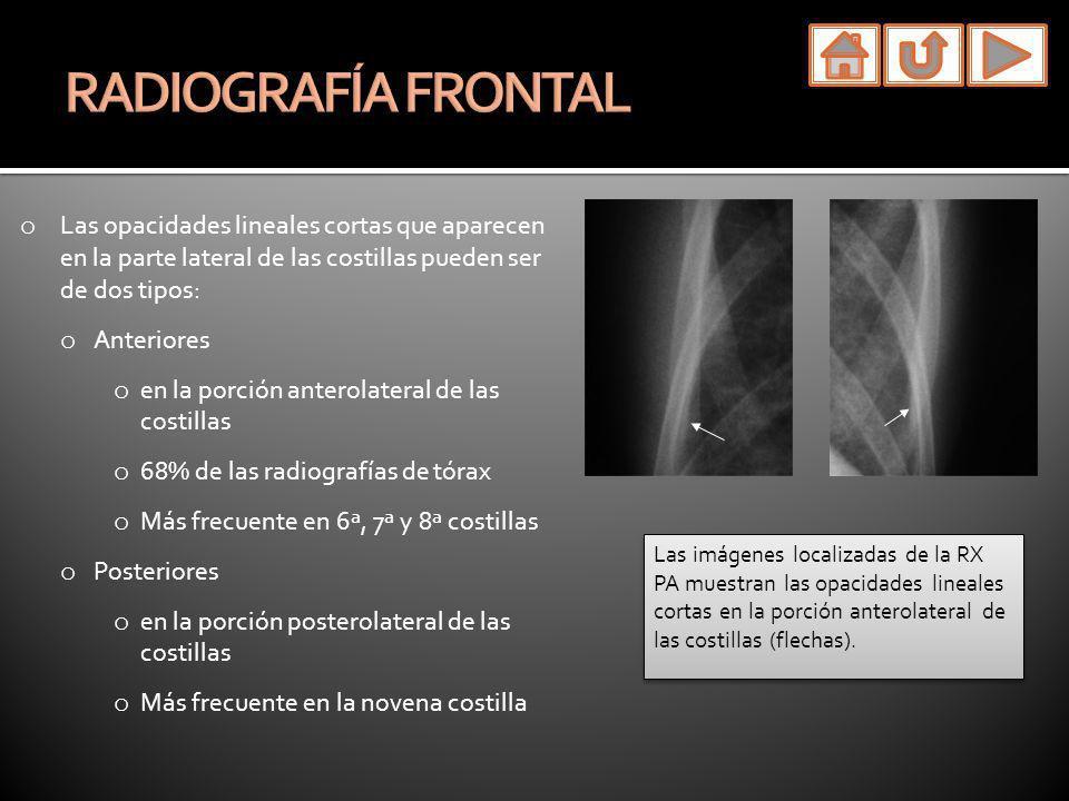RADIOGRAFÍA FRONTAL Las opacidades lineales cortas que aparecen en la parte lateral de las costillas pueden ser de dos tipos: