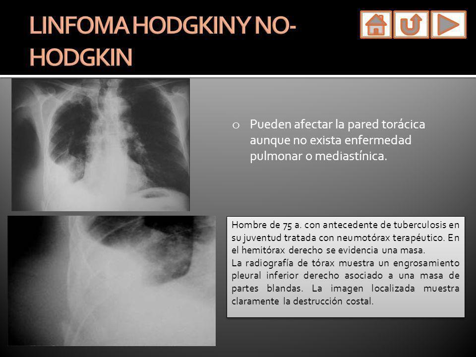 LINFOMA HODGKIN Y NO-HODGKIN