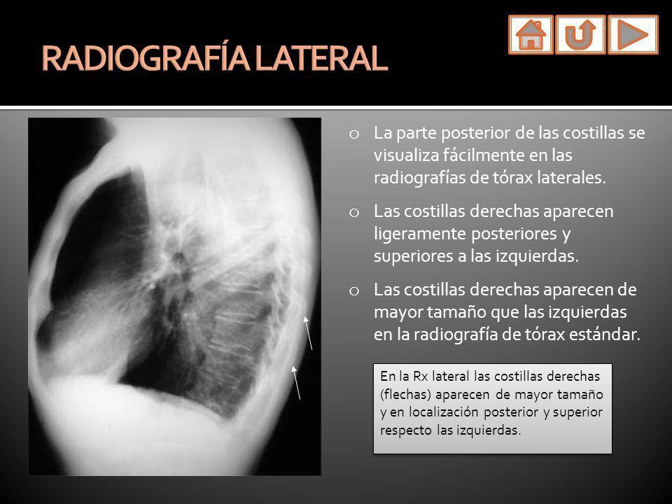 RADIOGRAFÍA LATERALLa parte posterior de las costillas se visualiza fácilmente en las radiografías de tórax laterales.