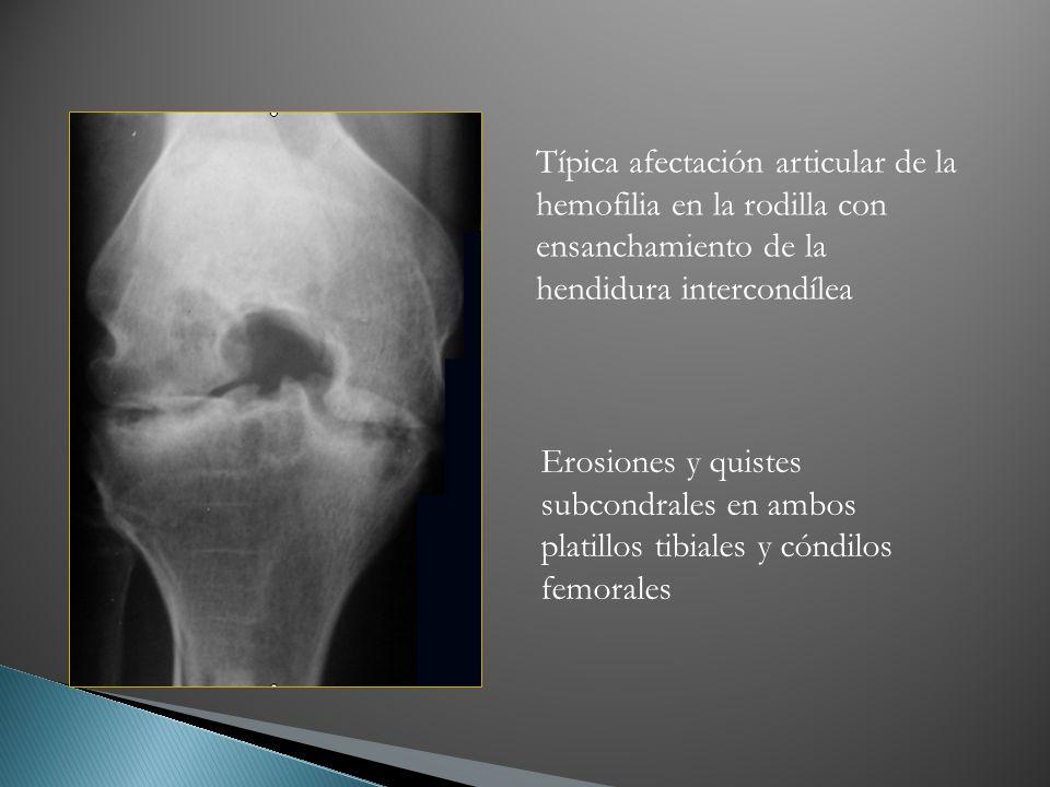 Típica afectación articular de la hemofilia en la rodilla con ensanchamiento de la hendidura intercondílea