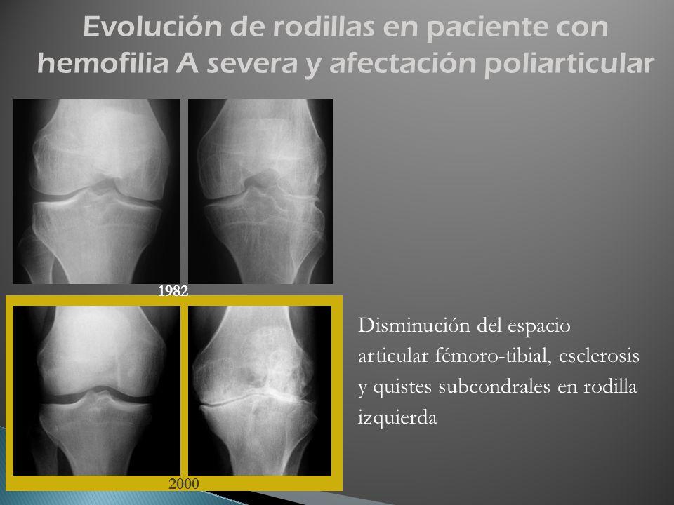 Evolución de rodillas en paciente con hemofilia A severa y afectación poliarticular