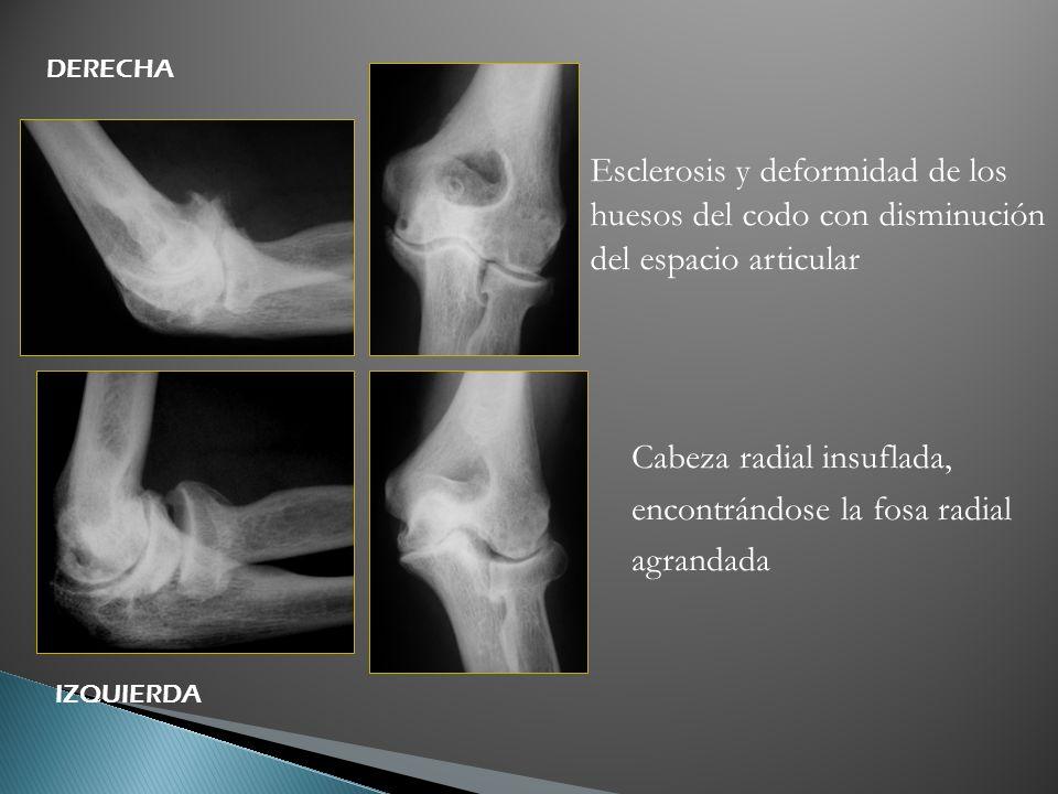 Esclerosis y deformidad de los huesos del codo con disminución