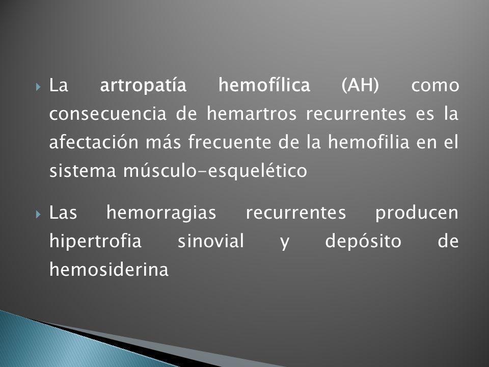 La artropatía hemofílica (AH) como consecuencia de hemartros recurrentes es la afectación más frecuente de la hemofilia en el sistema músculo-esquelético