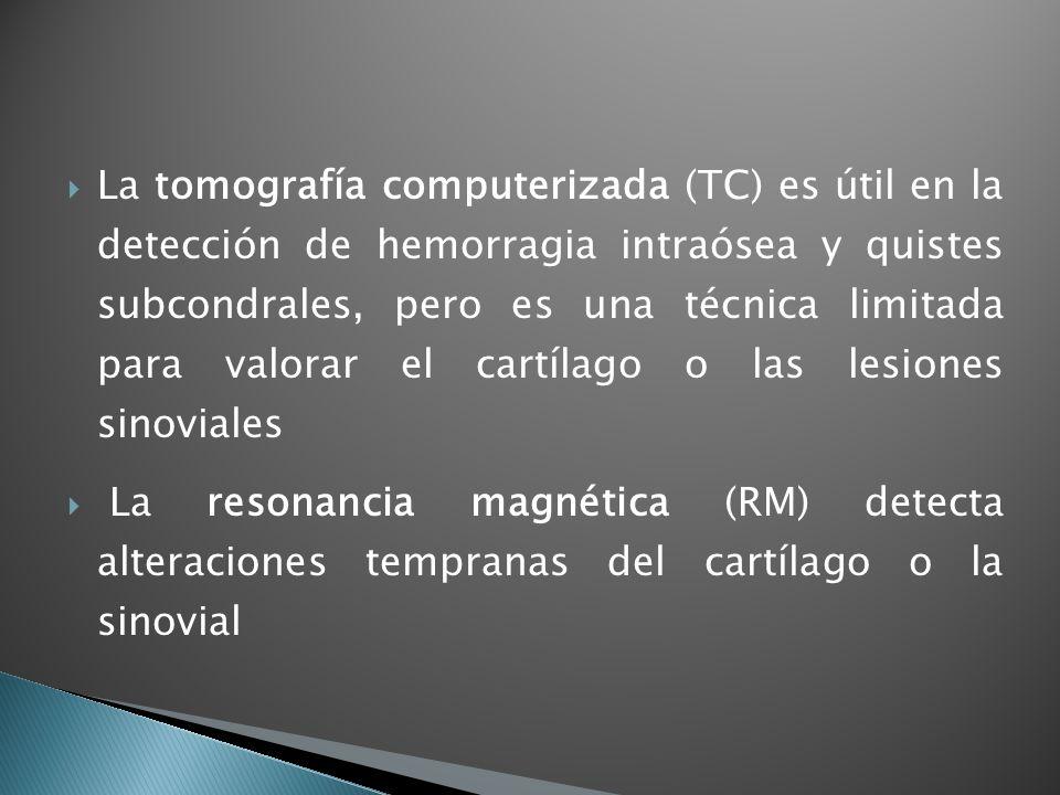 La tomografía computerizada (TC) es útil en la detección de hemorragia intraósea y quistes subcondrales, pero es una técnica limitada para valorar el cartílago o las lesiones sinoviales