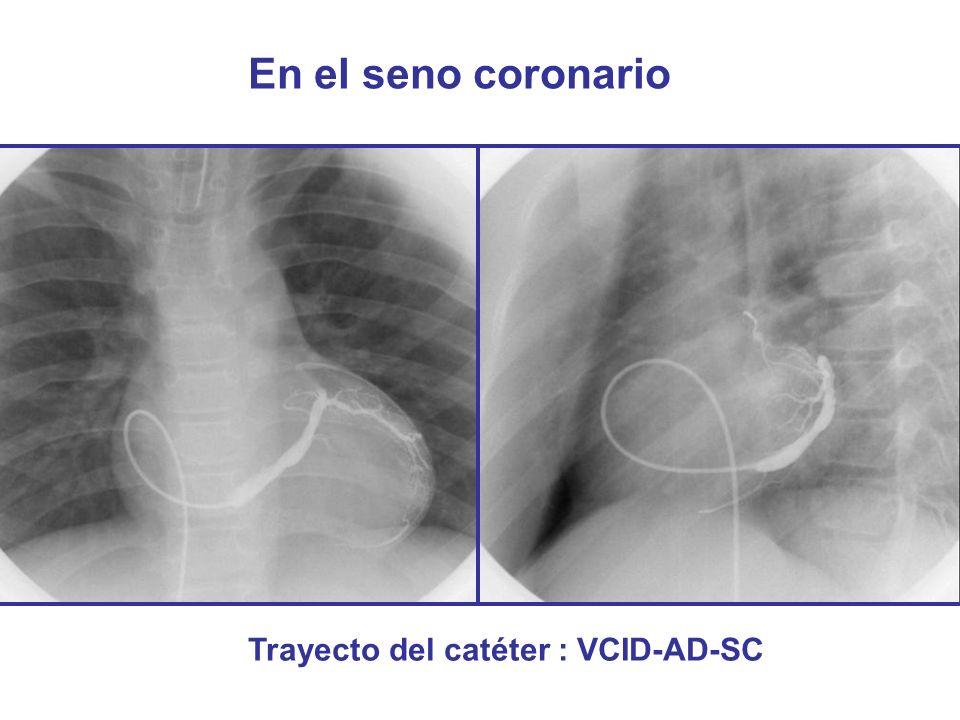 En el seno coronario Trayecto del catéter : VCID-AD-SC