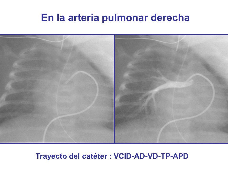 En la arteria pulmonar derecha