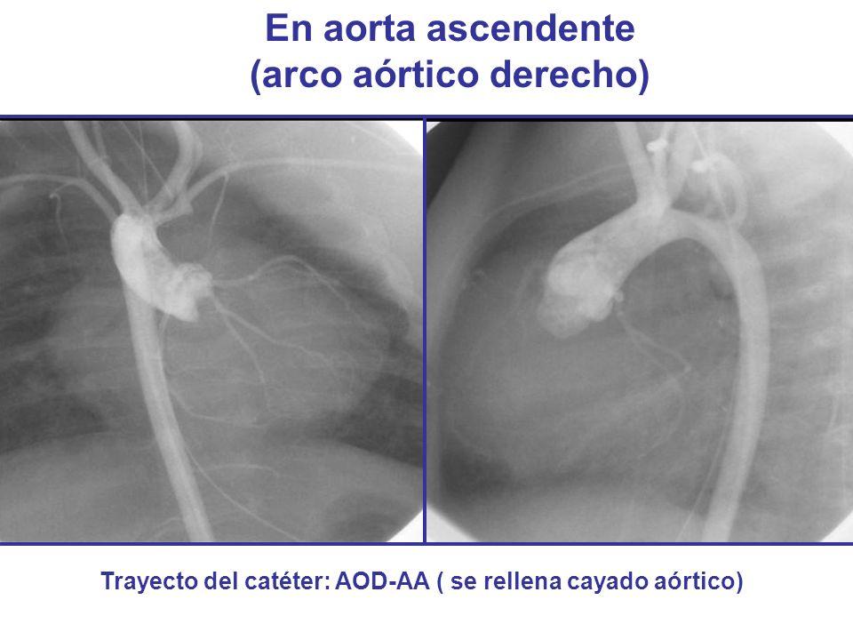 En aorta ascendente (arco aórtico derecho)