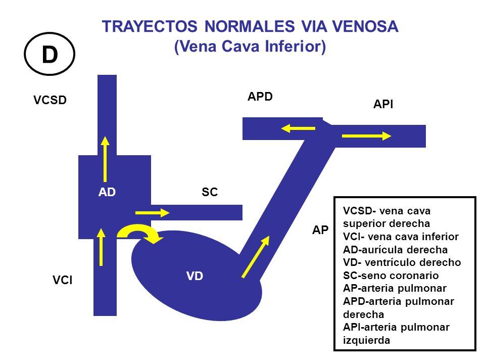 TRAYECTOS NORMALES VIA VENOSA (Vena Cava Inferior)