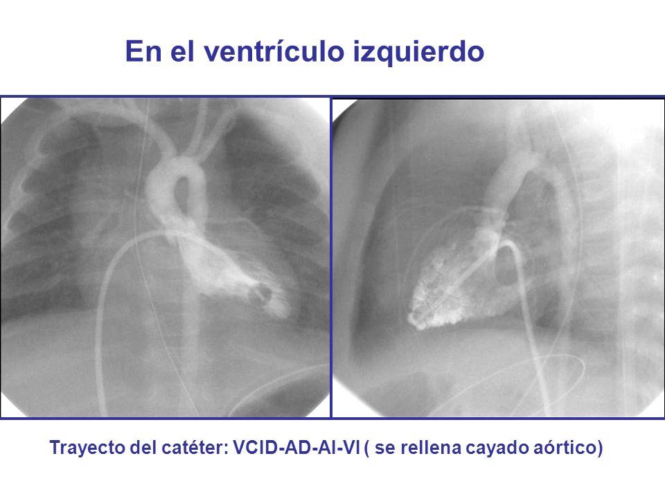 En el ventrículo izquierdo