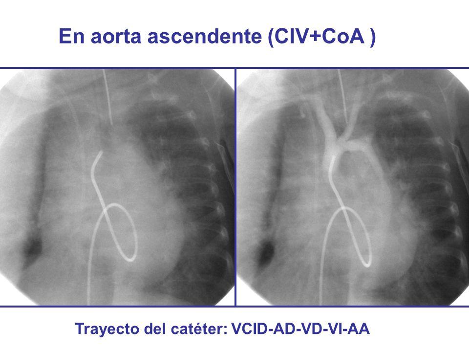 En aorta ascendente (CIV+CoA )