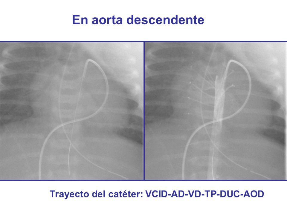 Trayecto del catéter: VCID-AD-VD-TP-DUC-AOD