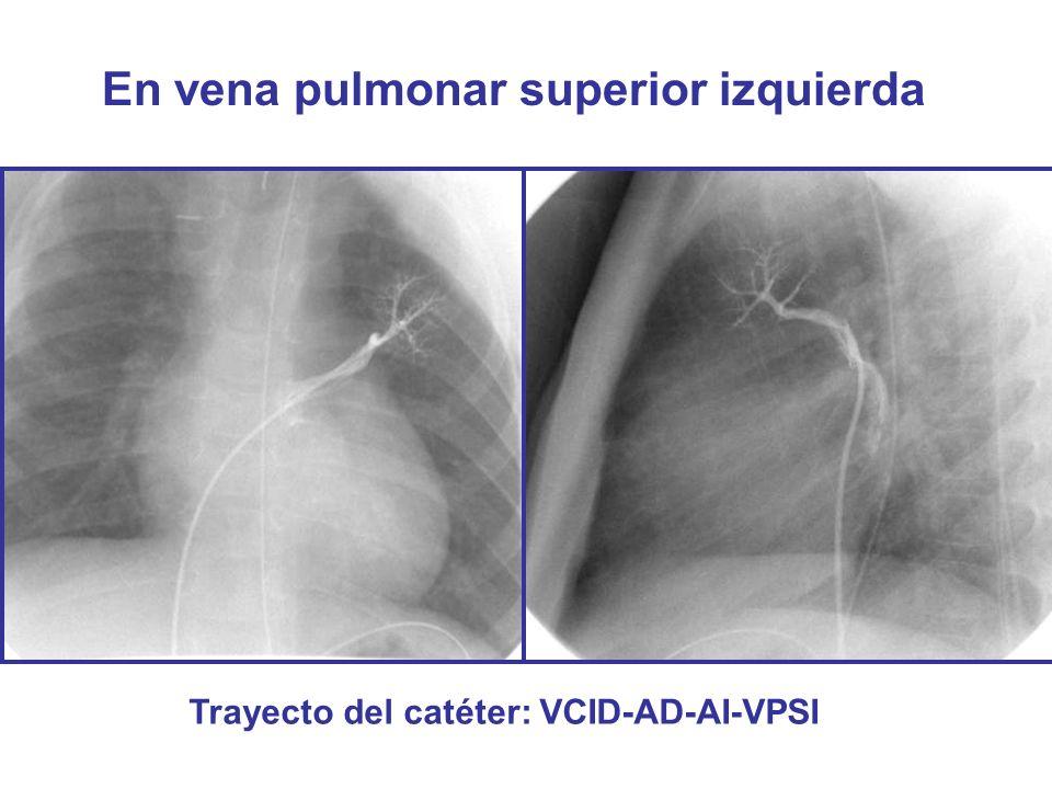 En vena pulmonar superior izquierda