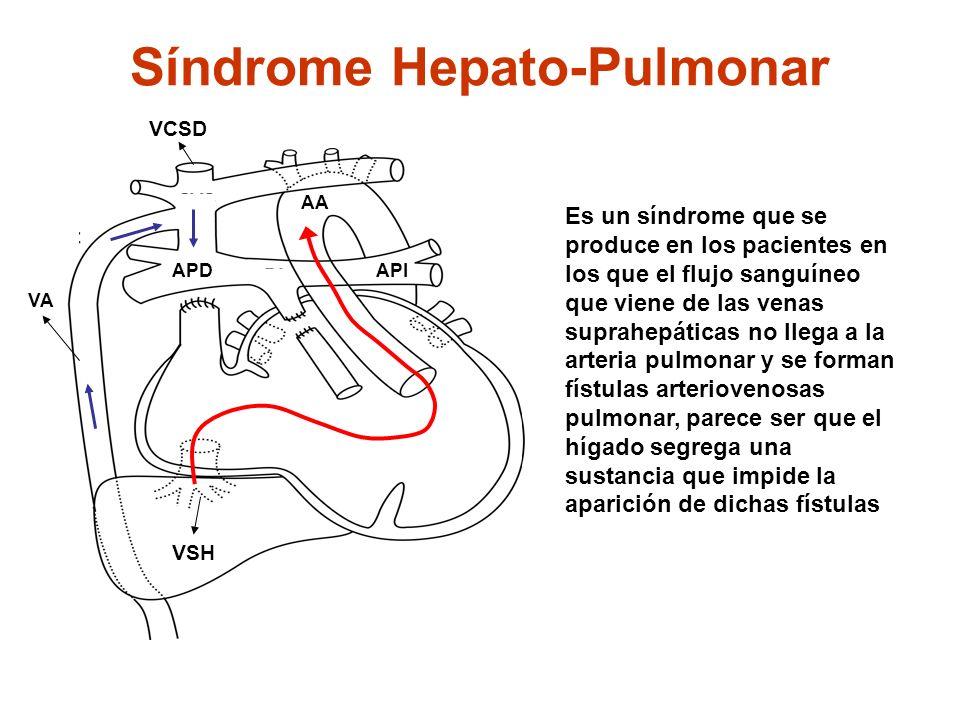 Síndrome Hepato-Pulmonar