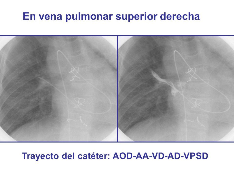 En vena pulmonar superior derecha