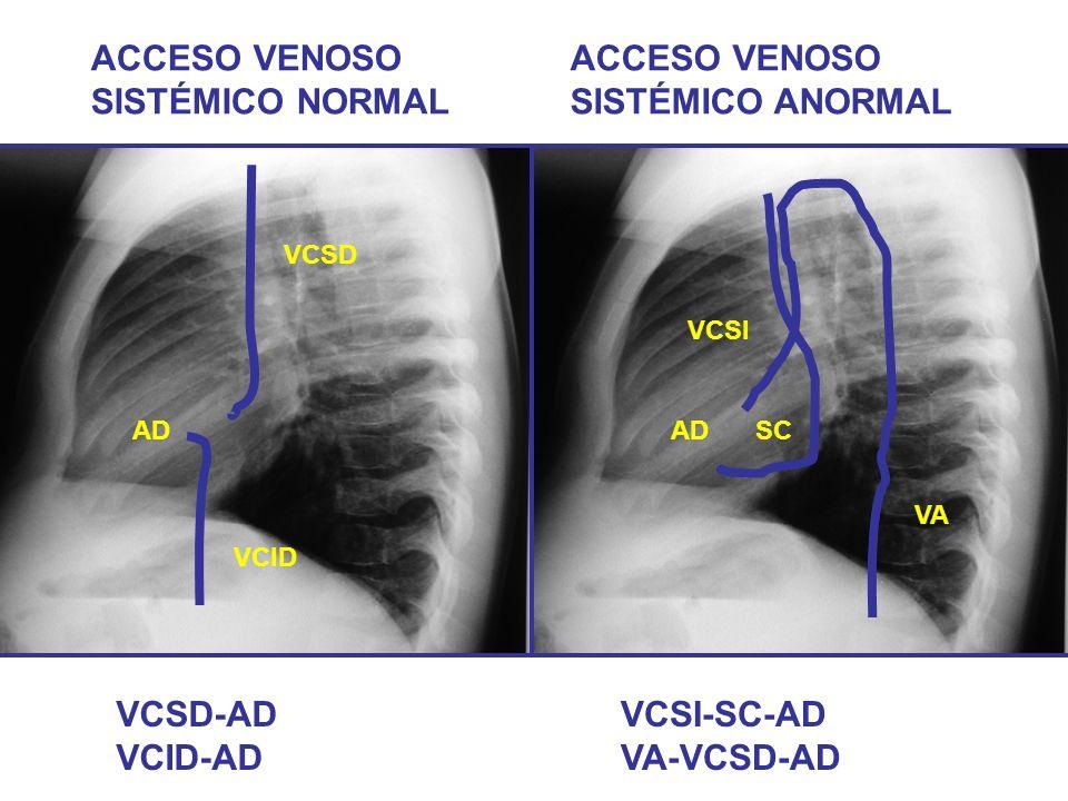 ACCESO VENOSO SISTÉMICO NORMAL ACCESO VENOSO SISTÉMICO ANORMAL