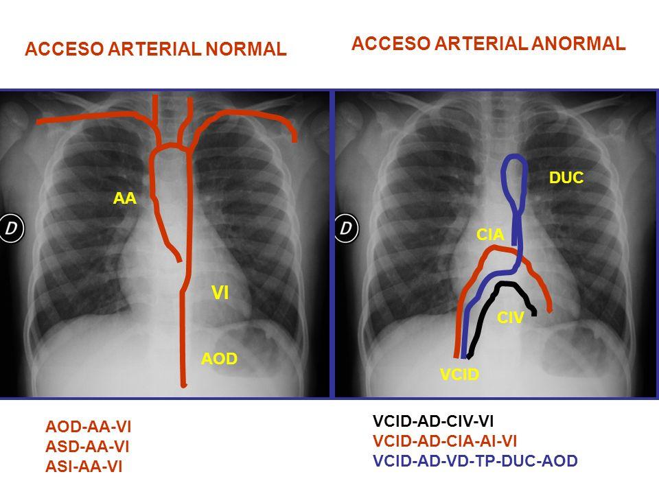 ACCESO ARTERIAL ANORMAL ACCESO ARTERIAL NORMAL
