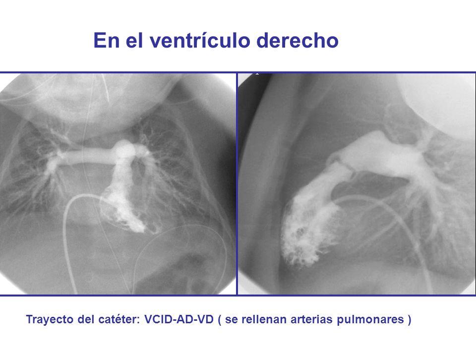 En el ventrículo derecho