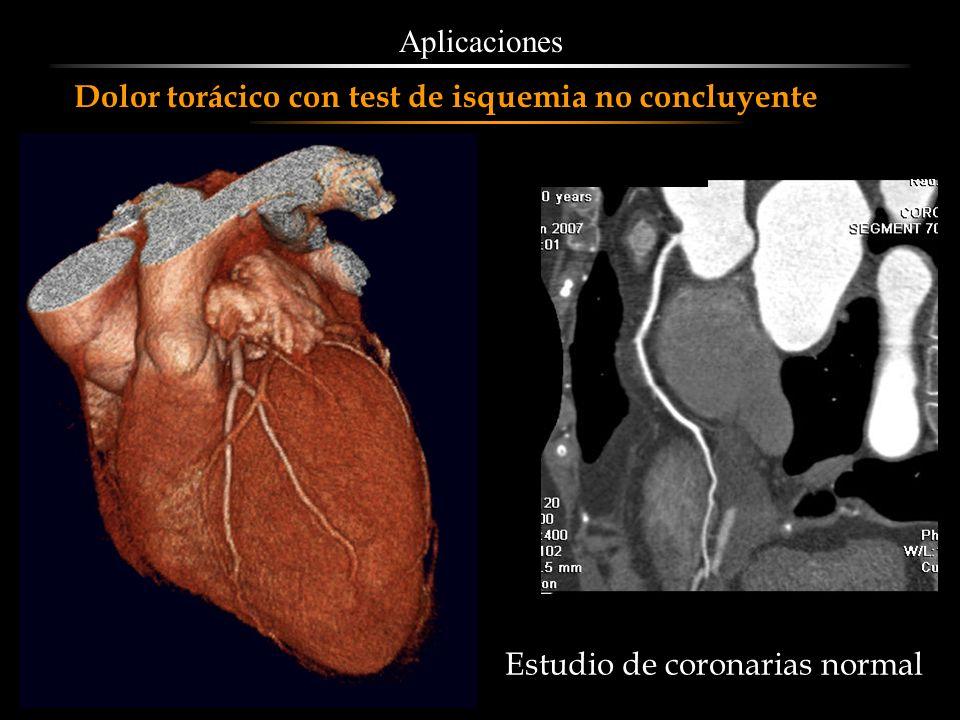 Aplicaciones Dolor torácico con test de isquemia no concluyente Estudio de coronarias normal