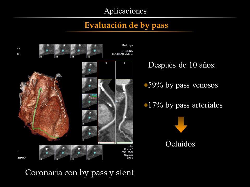 Aplicaciones Evaluación de by pass. Después de 10 años: 59% by pass venosos. 17% by pass arteriales.
