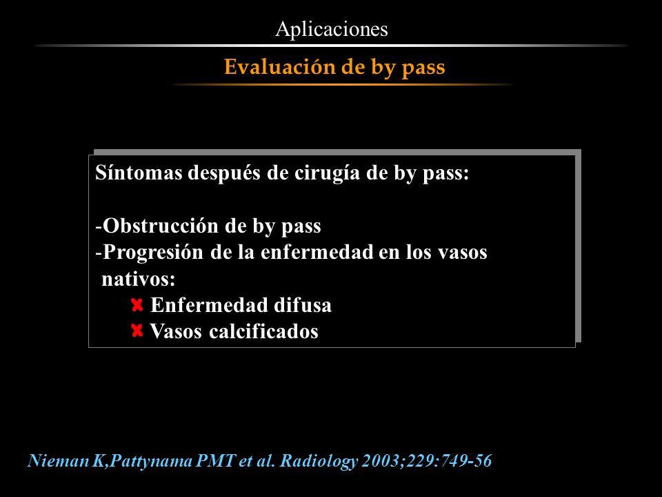 Síntomas después de cirugía de by pass: Obstrucción de by pass