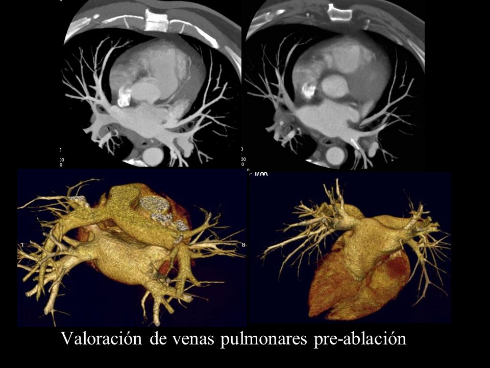 Valoración de venas pulmonares pre-ablación